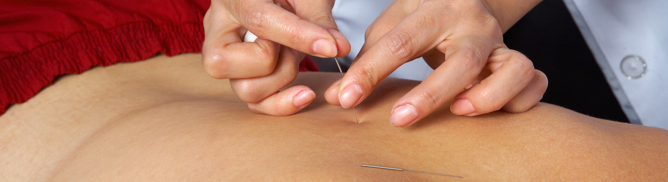 Functional Dry Needling El Paso, Horizon City, TX & Las Cruces, NM